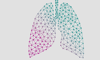 PneuVUE®: A new view into Pneumonia among older adults